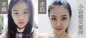 小颖-韩式双眼皮