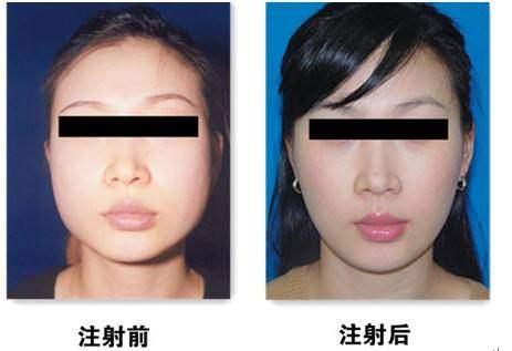 瘦脸针案例12.jpg