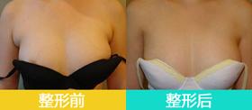 副乳祛除术