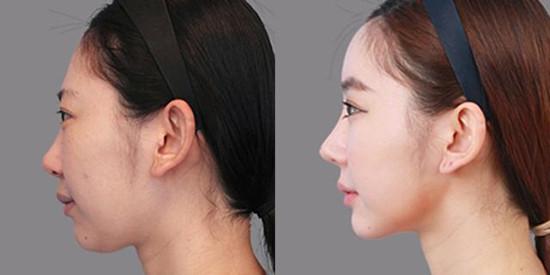 隆鼻案例7.jpg