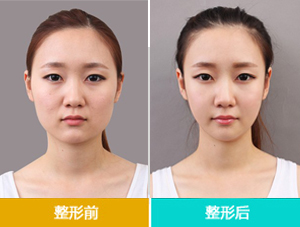 Botox瘦脸针