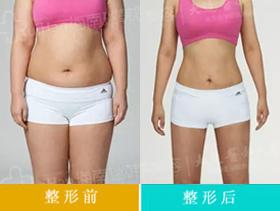 光纤溶脂减肥