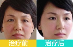 3D青春定格术