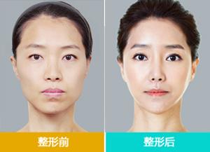 面部塑形系统