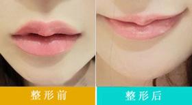 唇系带延长