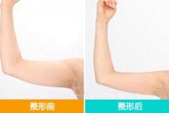Botox瘦手臂