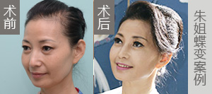 朱姐-3D青春定格术